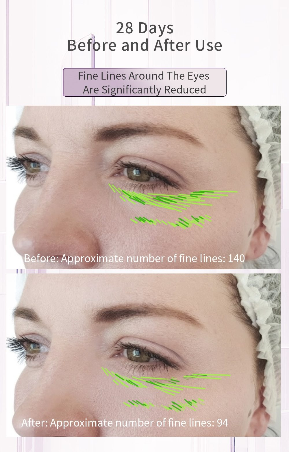 ANLAN RF Lifting Facial Mesotherapy Skin Tightening Rejuvenation Radio Frequency Beauty Instrument Face Firming Wrinkle Removal