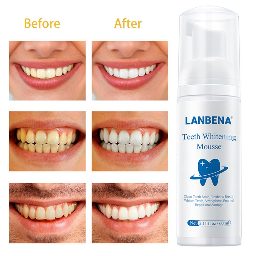 60ml Teeth Cleaning Mousse  Foam Whitening Toothpaste Stain Remover Oral Hygiene Teeth Whitening Tools Lanbena Mousse