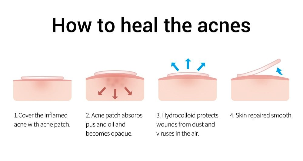 BREYLEE Acne Pimple Patch  Stickers Acne Treatment Pimple Remover Tool Blemish Spot Facial Mask Skin Care  Waterproof 22 Patches